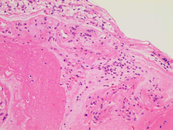 微软用AI帮助筛查宫颈癌,效率提升约4倍
