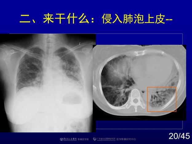 赵振军:最全图文解读《新冠肺炎CT早期诊断和鉴别诊断》(中)