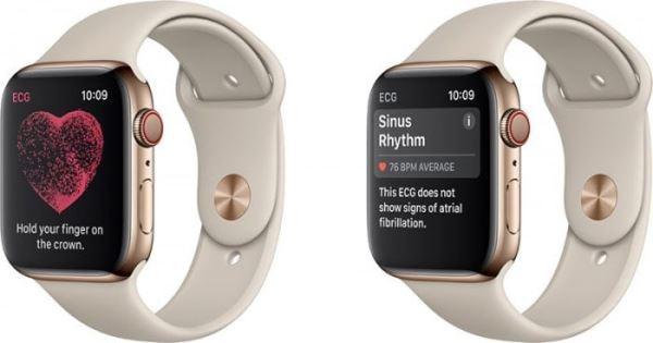 纽约医生告苹果 Watch 侵权,称「监测不规则脉搏律动」侵犯专利
