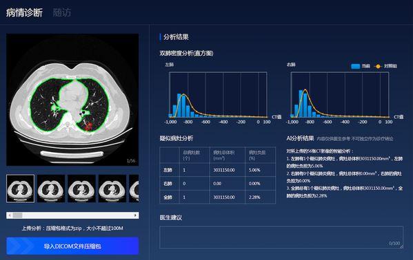 基于百度飞桨的连心医疗肺炎筛查和预评估AI系统投入使用