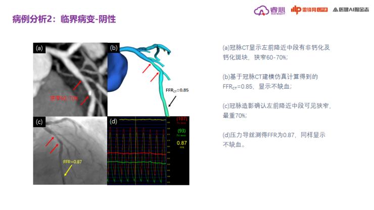 睿心医疗马骏:「形态学+功能学」,如何实现心血管疾病的智能诊断?